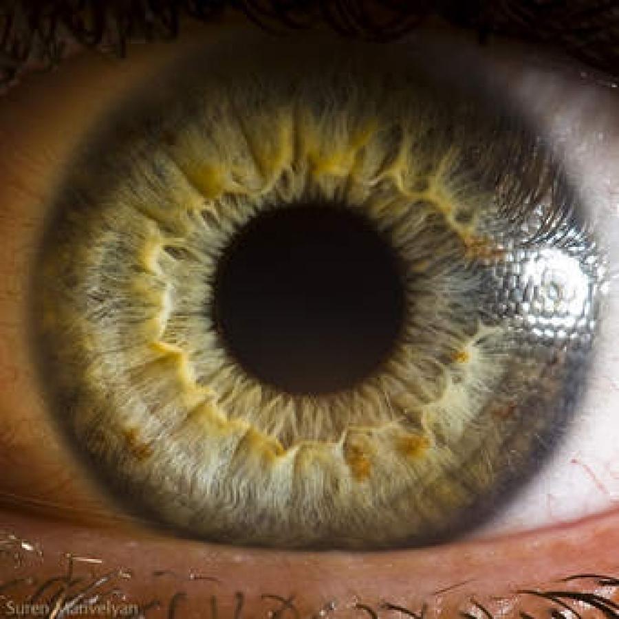 Το θαύμα της όρασης: Τι βλέπει το μωρό σας!