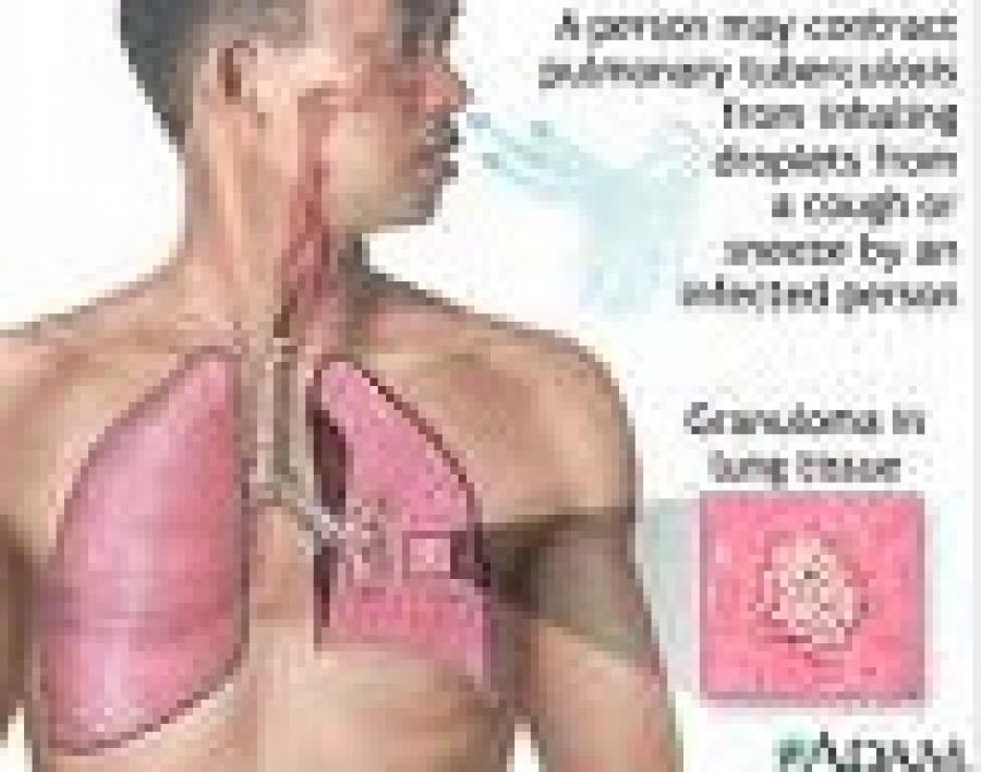Φυματίωση συνήθεις ερωτήσεις
