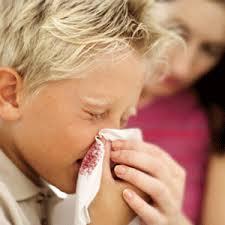 Αιμορραγία από τη μύτη (ρινοραγία)