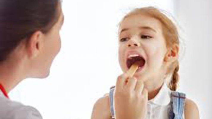Αμυγδαλίτιδα: στρεπτοκοκκική ή όχι;