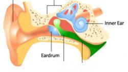 Υγρό στο αυτί (μέση εκκριτική ωτίτιδα)