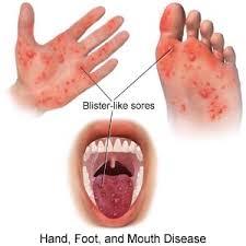 Νόσος χεριών-ποδιών-στόματος (Hand-foot-mouth disease)